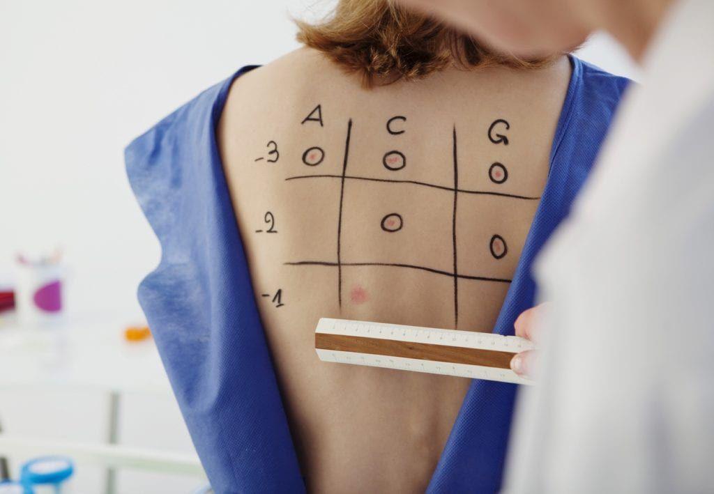 intradermal skin testing