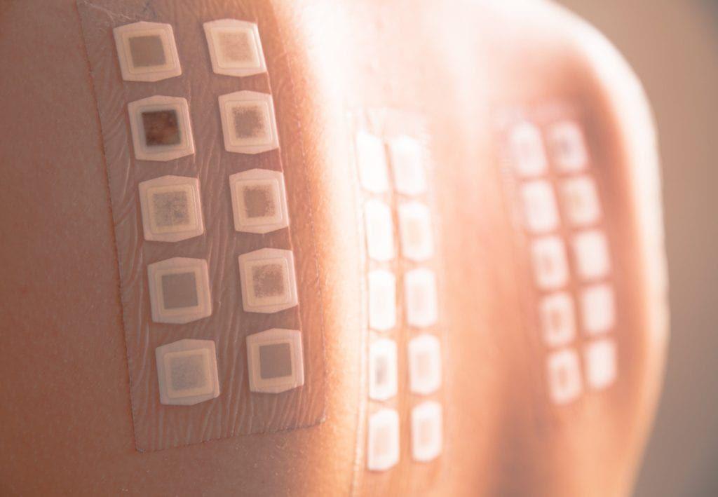 skin patch testing